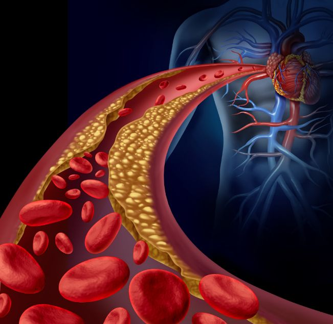 burial insurance for people with vascular disease
